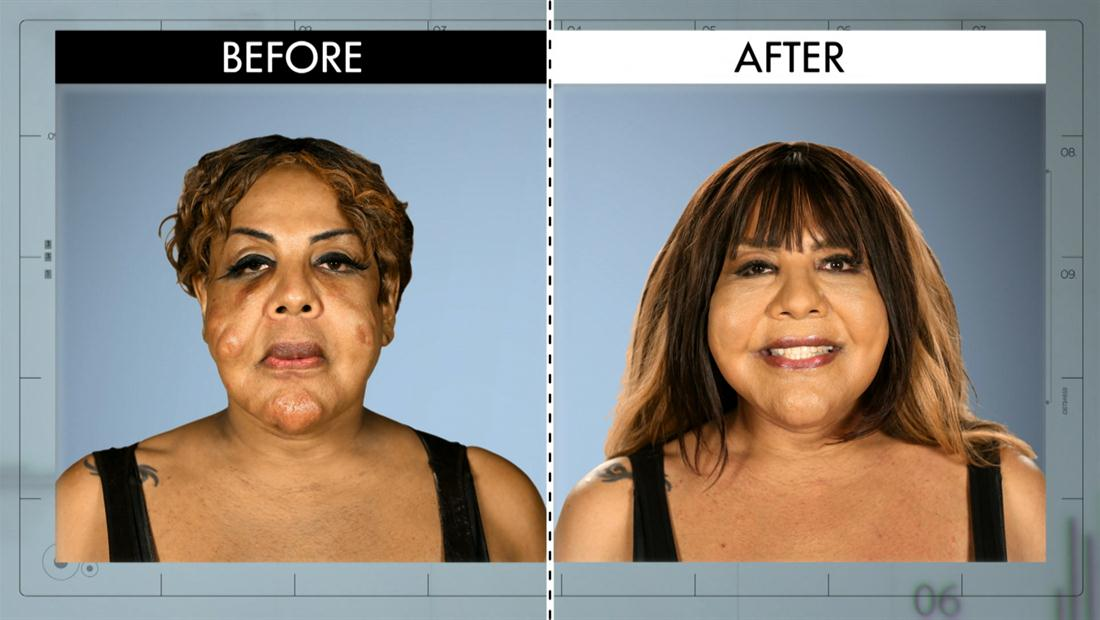 Most Outrageous Before & After