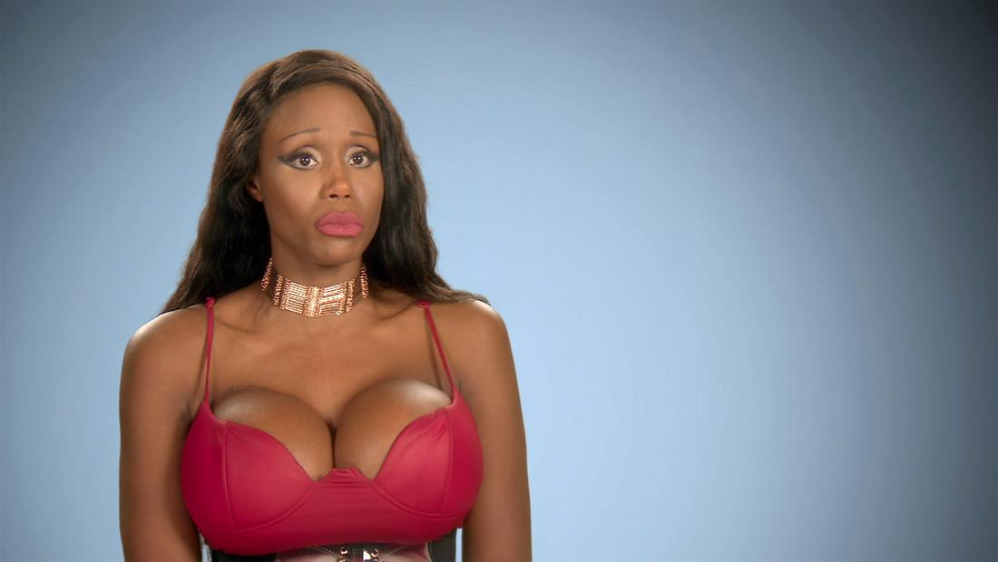 """Botched"" Recap: 420"